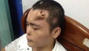 Έφτιαξαν νέα «τεχνητή» μύτη στο μέτωπο άνδρα!
